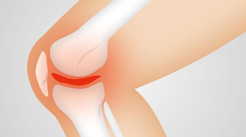 gonartrosi e protesi ginocchio