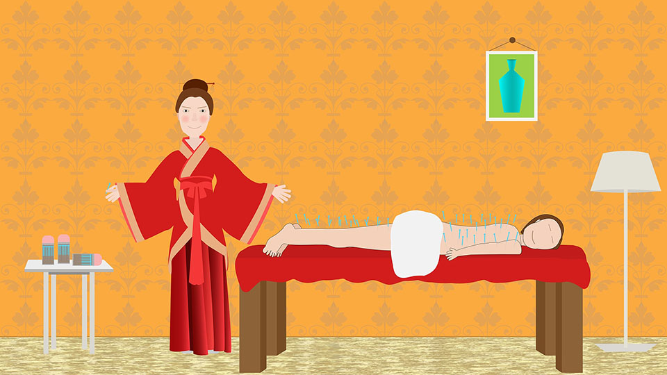 agopuntura nella medicina cinese
