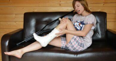 Ragazza con ingessatura al piede
